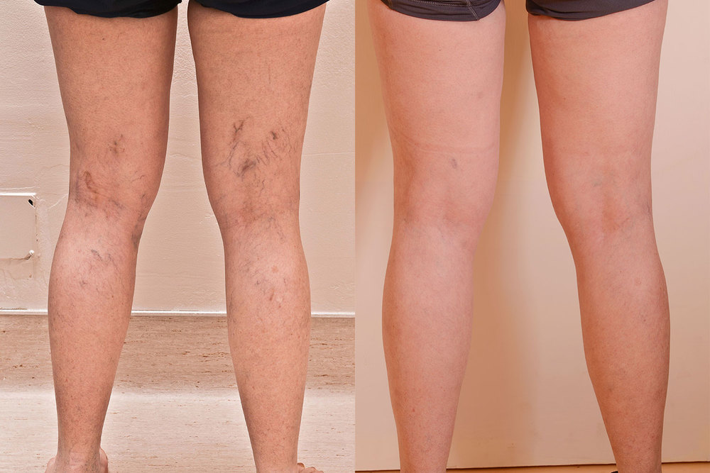 how do you treat spider veins