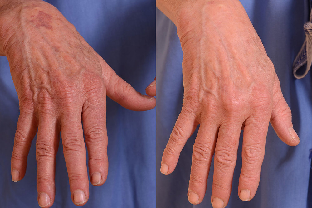 Hand-skin-Improvement-Before-and-After-resized.jpg