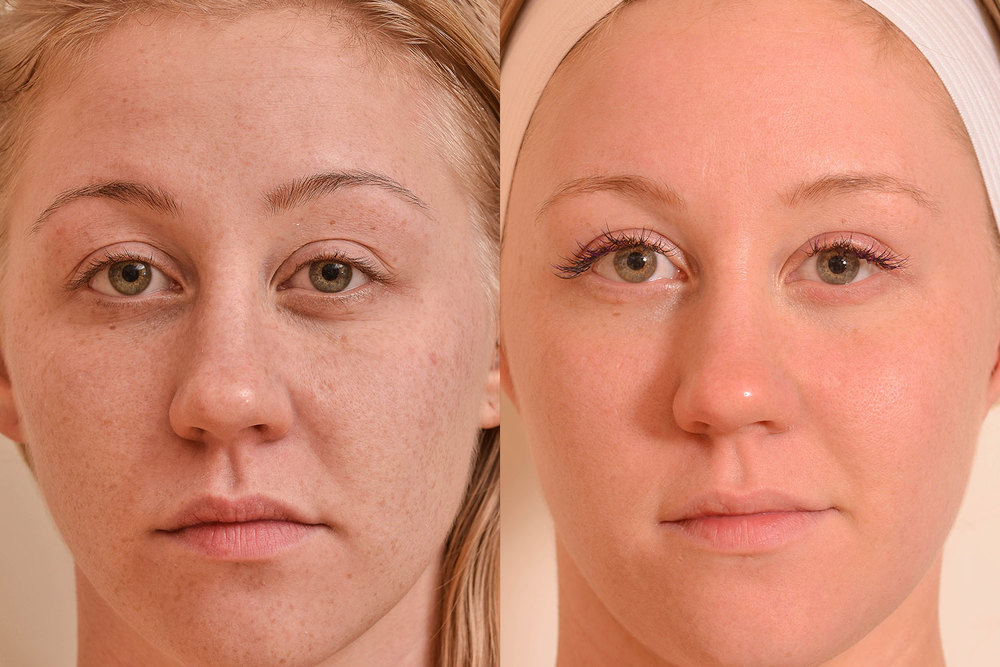 Sun-Damage-laser-treatment-resized (1).jpg