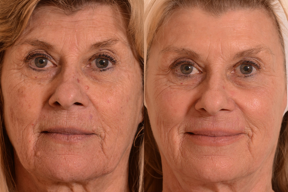 Laser-skin-improvement-wrinkles.jpg