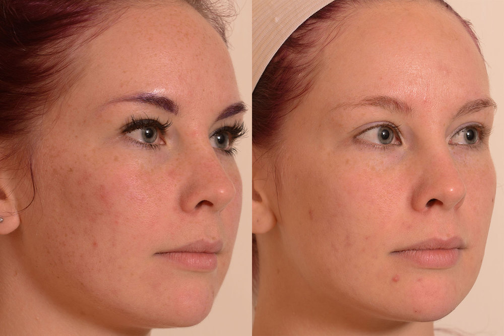 Improving-Skin-With-Light-resized.jpg