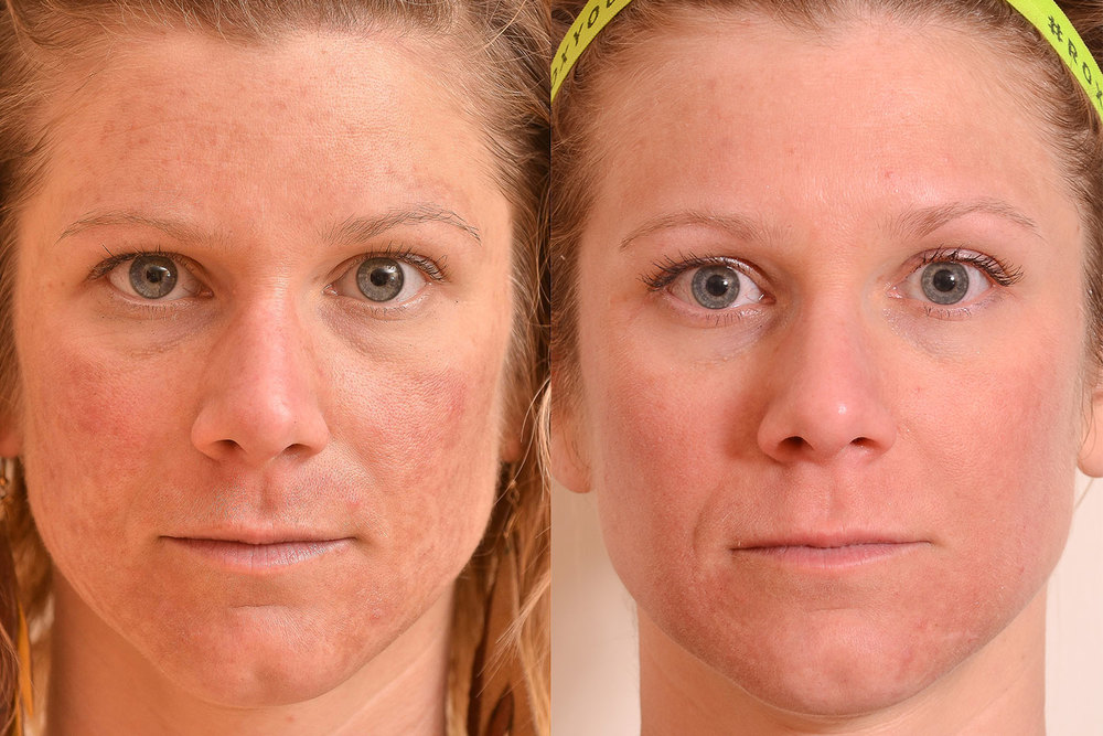 Melasma-Laser-Treatment-resized-.jpg