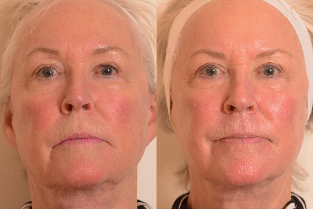 Redness-wrinkles-laser-treatment.jpg