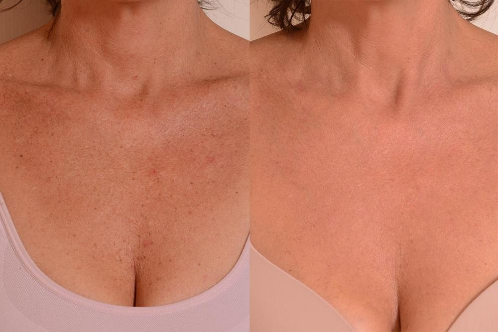 Chest-decolletage-skin-look-young-again.jpg