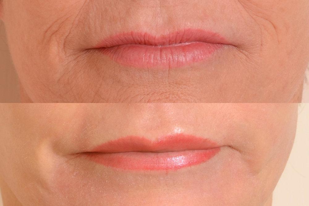 Wrinkles around mouth.jpg