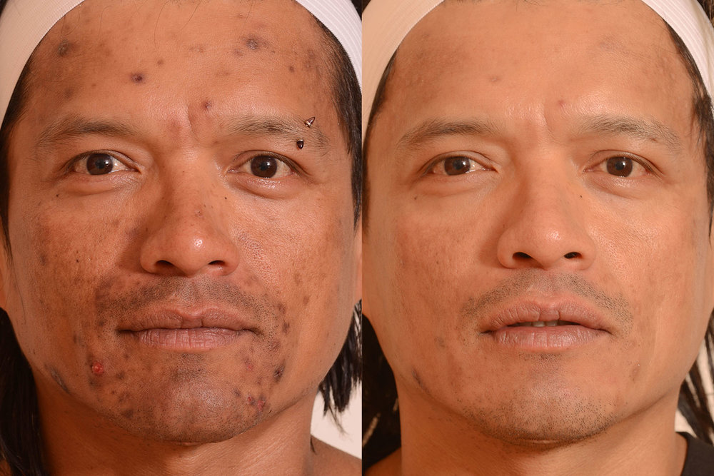 Acne-scar-laser-treatment.jpg