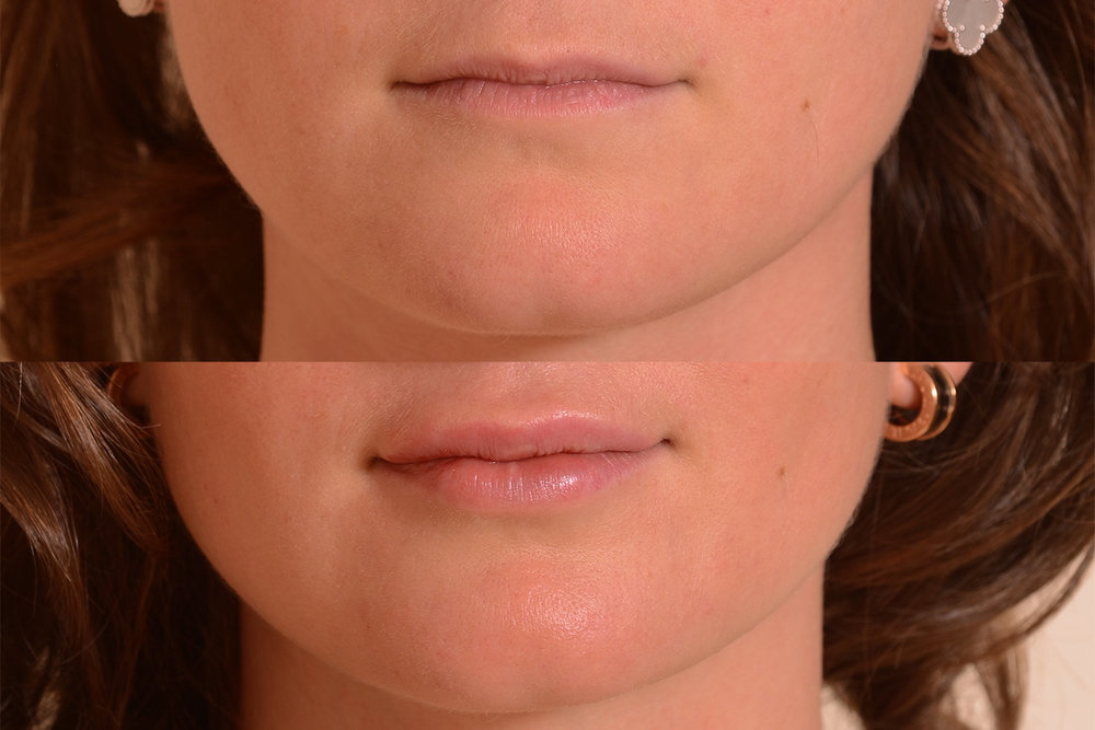 Lip Filler Results.jpg
