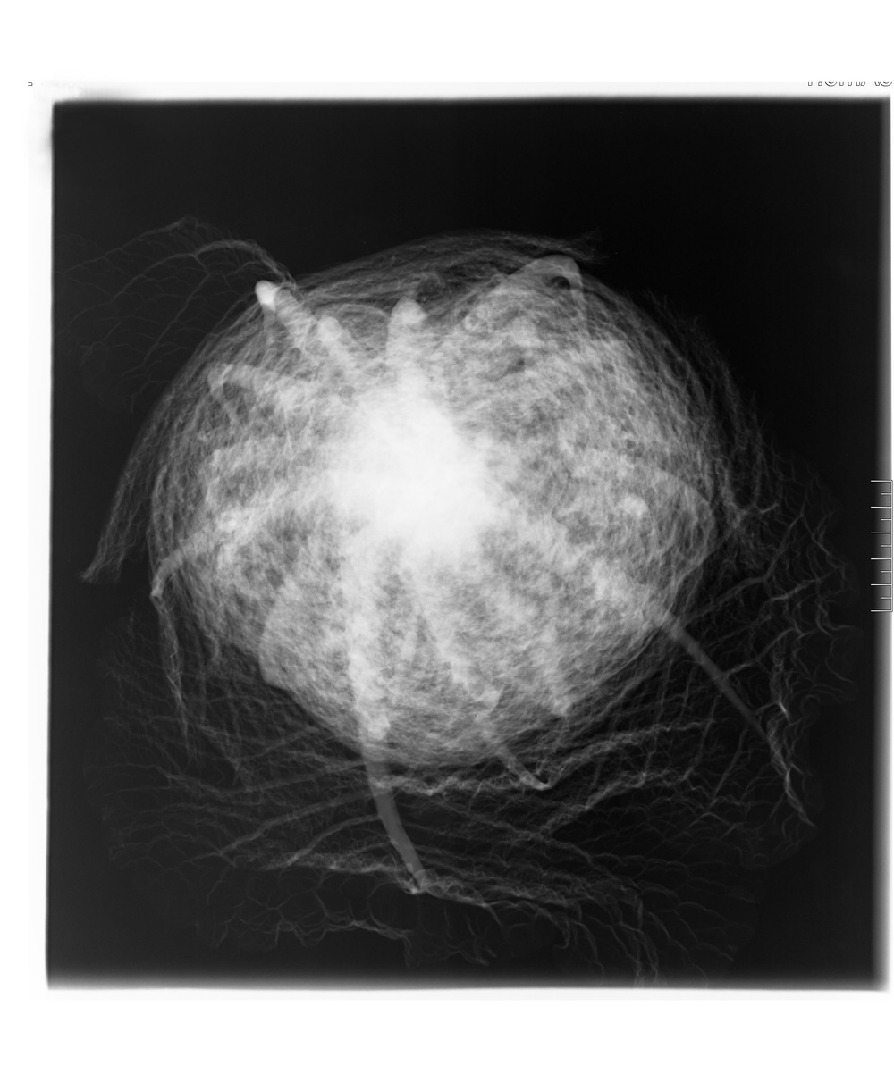 Röntgen6_web.jpg