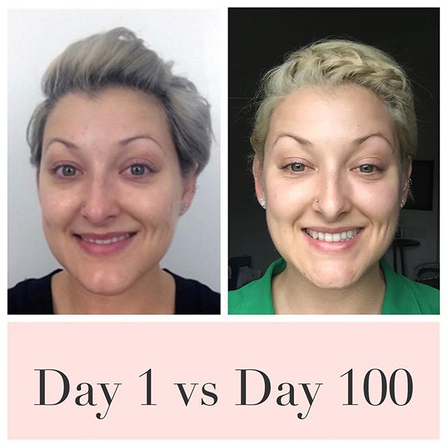 What a difference 100 days makes // Before & After // Link in bio // #MakeupFree #NoMakeup #FreshFaced #Barefaced #RealBeauty #RawBeauty #RawandReal #Beauty #NaturalBeauty #FlawlessFace #Flawless #100DaysWithoutMakeup #100DayChallenge #100DayProject #The100DayProject #IWokeupLikeThis #Selfie #ShamelessSelfie #RealNotRetouched #RealGirls #NakedSkin #RadiantSkin #GlowingSkin #GlowySkin #GetYourGlowOn #GlowFromWithin #HealthySkin #NoFilter