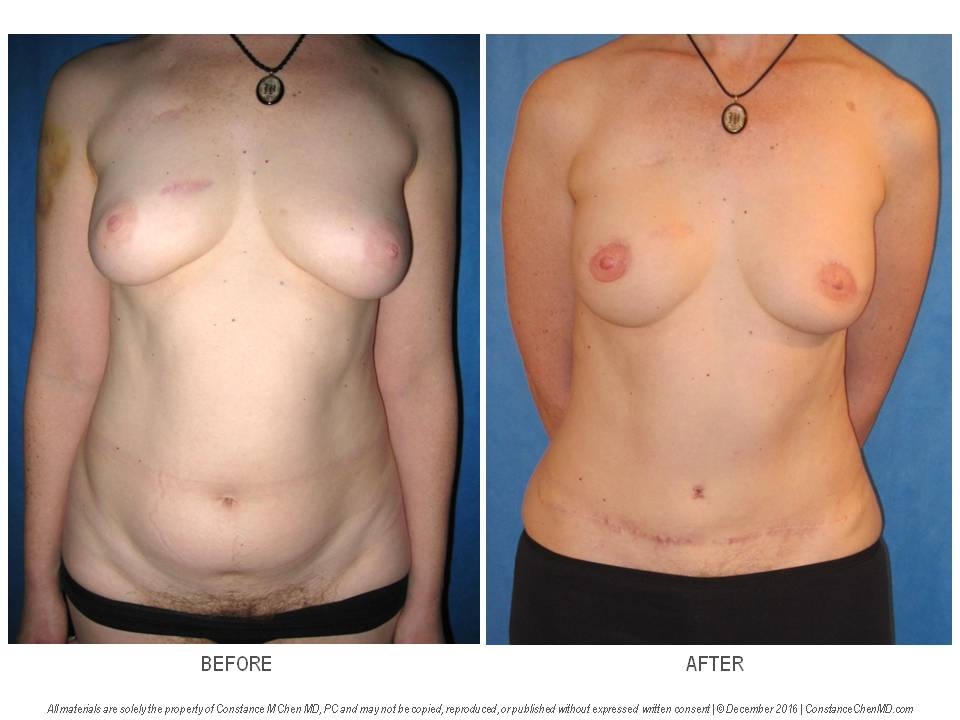 44-year-old BRCA+ woman with history of bilateral lumpectomies and radiation who developed subsequent right breast DCIS, and underwent bilateral skin-sparing mastectomies, right DIEP flap and left SIEA flap breast reconstruction, bilateral nipple reconstruction and tattooing