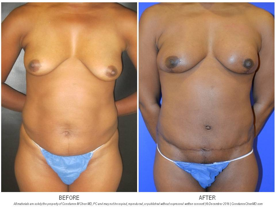 40-year-old BRCA2+ woman who underwent bilateral prophylactic nipple-sparing mastectomies and immediate DIEP flap breast reconstruction