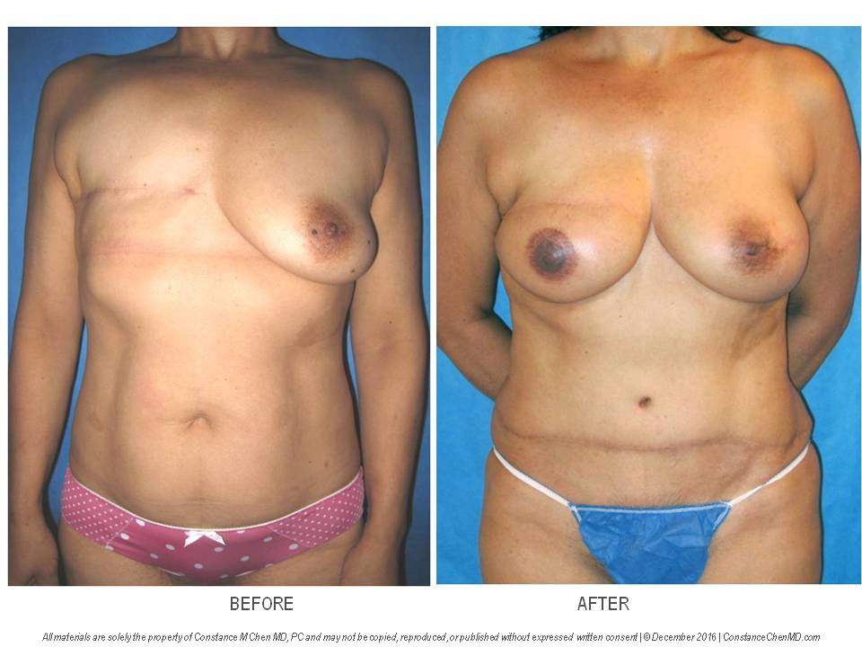 53-year-old woman with history of right mastectomy with no breast reconstruction. The patient subsequently underwent prophylactic left mastectomy and Dr. Chen performed bilateral DIEP flap breast reconstruction with right nipple reconstruction and right areola tattooing.