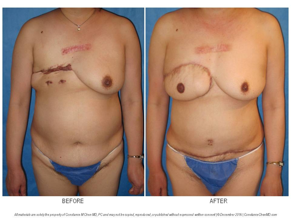 48-year-old woman with history of right mastectomy and severe keloids. Dr. Chen performed a delayed right DIEP flap breast reconstruction with right nipple reconstruction using the nipple-sharing technique