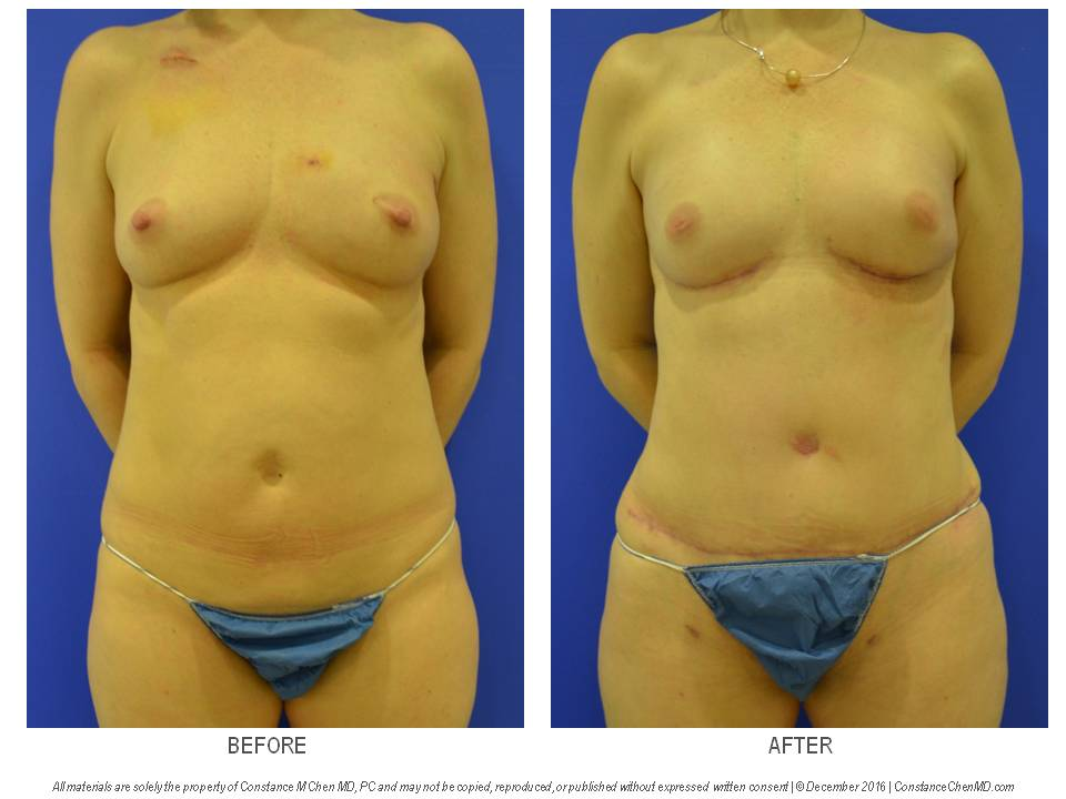 38-year-old BRCA+ woman with left breast cancer who underwent bilateral nipple-sparing mastectomies with bilateral DIEP flap breast reconstruction.