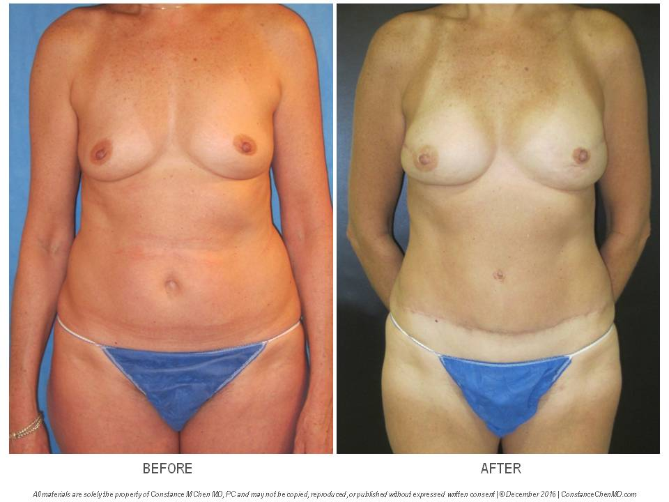 55-year-old woman strong family history of breast cancer and LCIS who underwent bilateral prophylactic nipple-sparing mastectomies with bilateral DIEP flap breast reconstruction.
