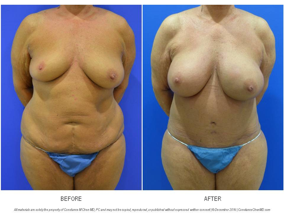 52-year-old woman with history of right lumpectomy and radiation who underwent bilateral prophylactic nipple-sparing mastectomies with immediate DIEP flap breast reconstruction