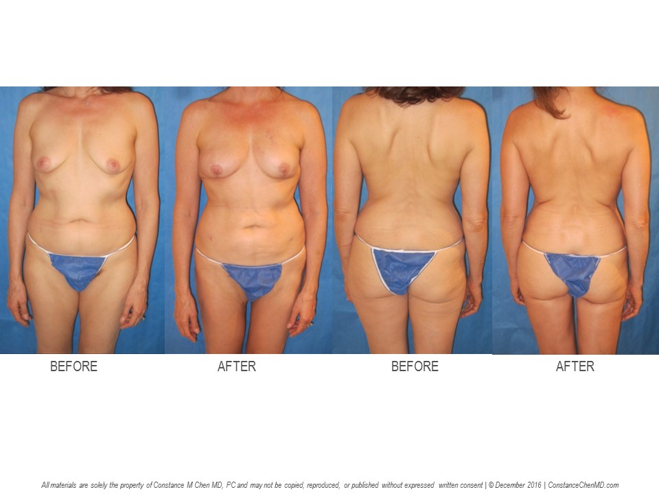 45-year-old (BMI 19.8) BRCA1+ woman who underwent bilateral prophylactic nipple-sparing mastectomies   with immediate PAP flap breast reconstruction