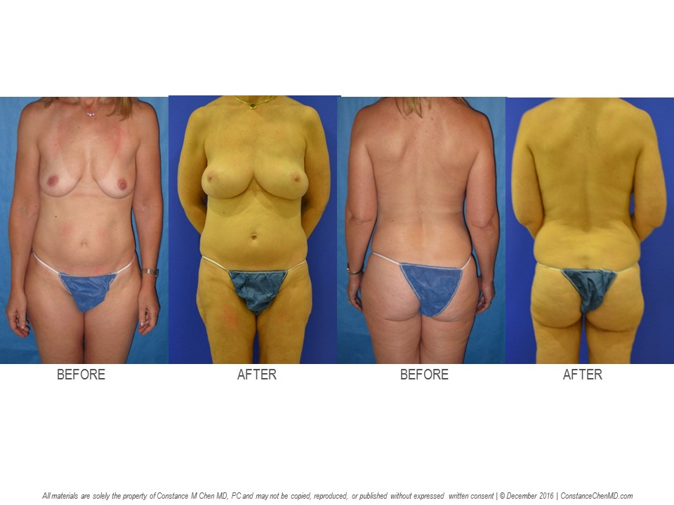 48-year-old (20.8) BRCA+ woman who underwent bilateral prophylactic nipple-sparing   mastectomies with immediate PAP flap breast reconstruction