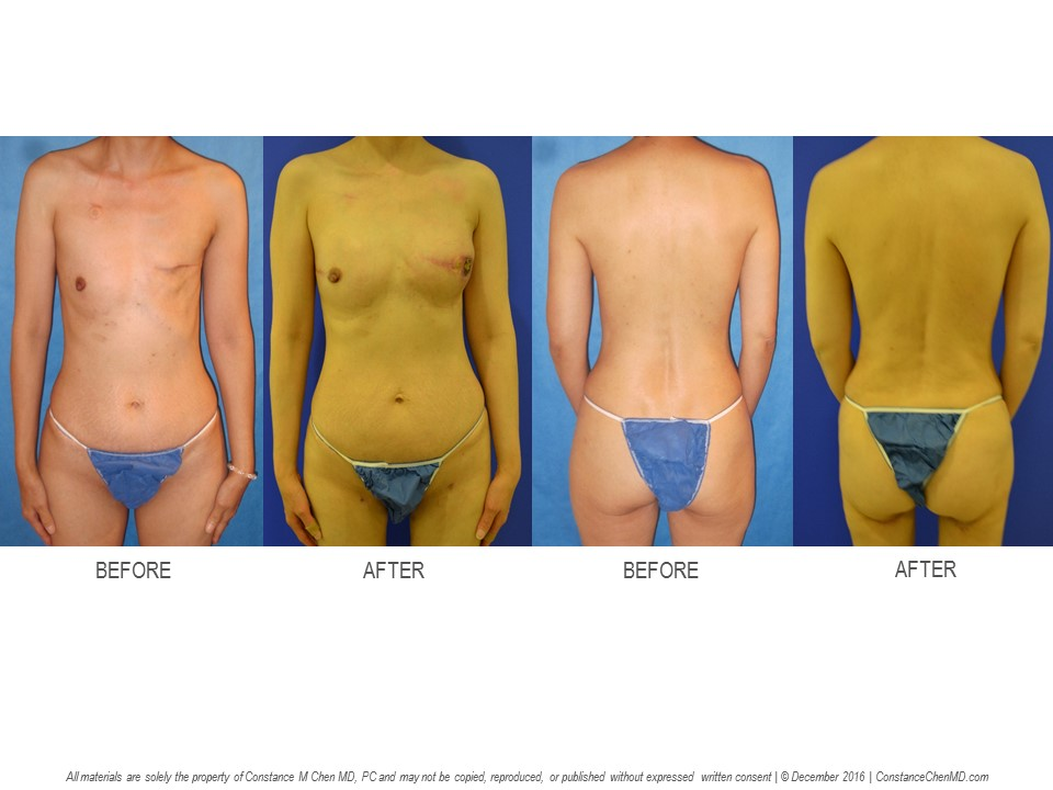 50-year-old (BMI 16.3) with a   history of left breast cancer and left mastectomy by another surgeon. The patient underwent right prophylactic nipple-sparing mastectomy and bilateral PAP flap breast reconstruction by Dr. Chen.