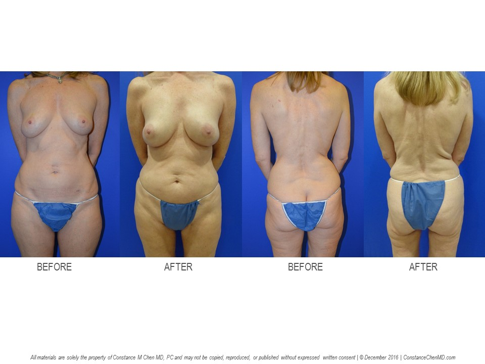 56-year-old   (BMI 19.1) BRCA+ woman who underwent bilateral prophylactic nipple-sparing mastectomies with immediate PAP flap breast reconstruction