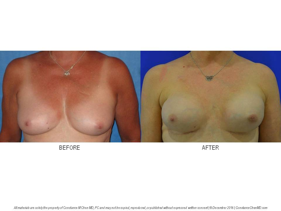 50-year-old BRCA+   woman with right breast cancer and colostomy from colon cancer who underwent bilateral nipple-sparing mastectomies with immediate bilateral tissue expander breast reconstruction.