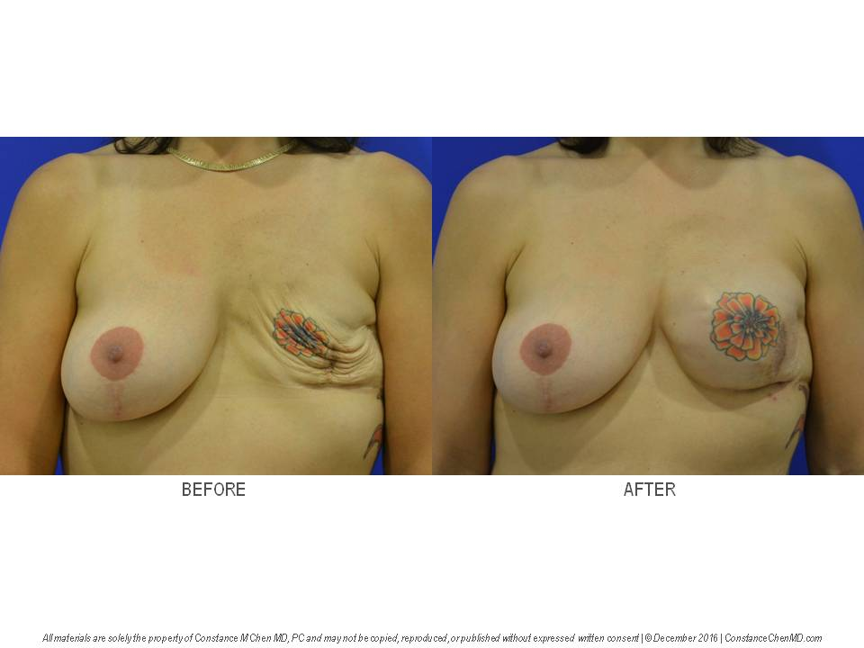 54-year-old   woman with history of left breast cancer and left saline implant breast reconstruction by another surgeon. Dr. Chen replaced the ruptured left breast implant with a new left breast saline implant.