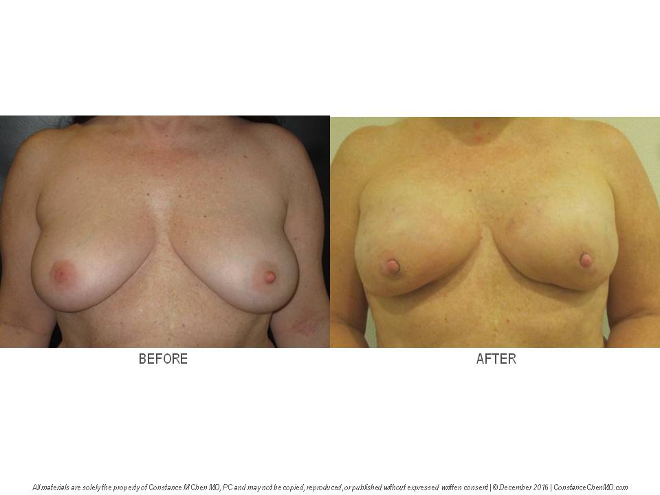49-year-old BRCA2+   woman with right breast cancer who underwent bilateral nipple-sparing mastectomies and silicone implant breast reconstruction