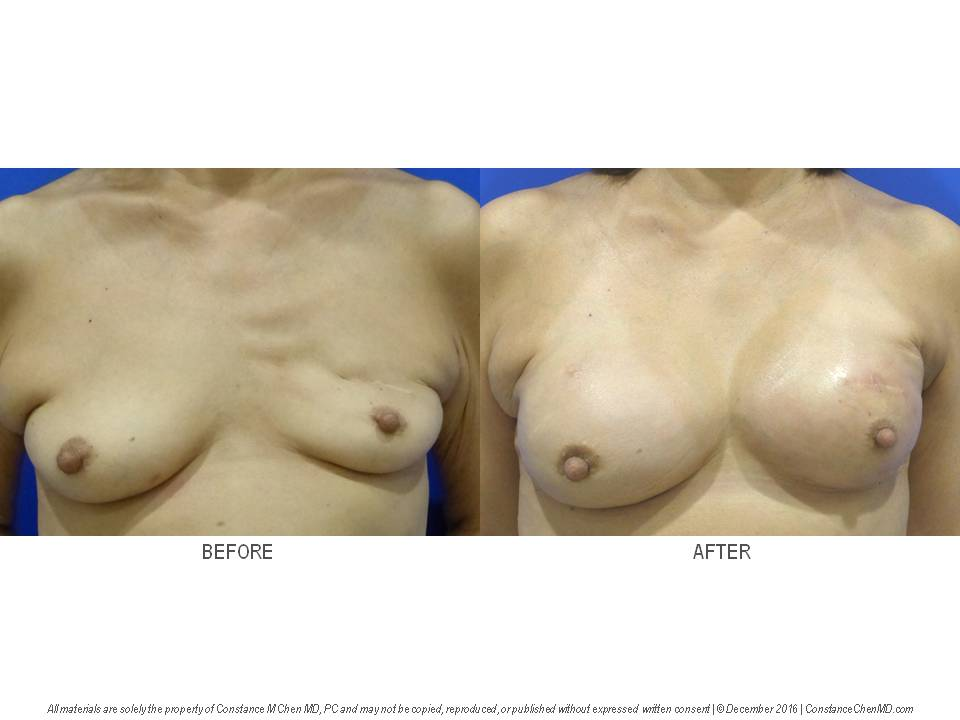 56-year-old   woman with new right breast cancer and previous left breast cancer, left lumpectomy and radiation treatment by another surgeon. The patient underwent bilateral nipple-sparing mastectomies with bilateral above-the-muscle cohesive gel implant breast reconstruction by Dr. Chen.