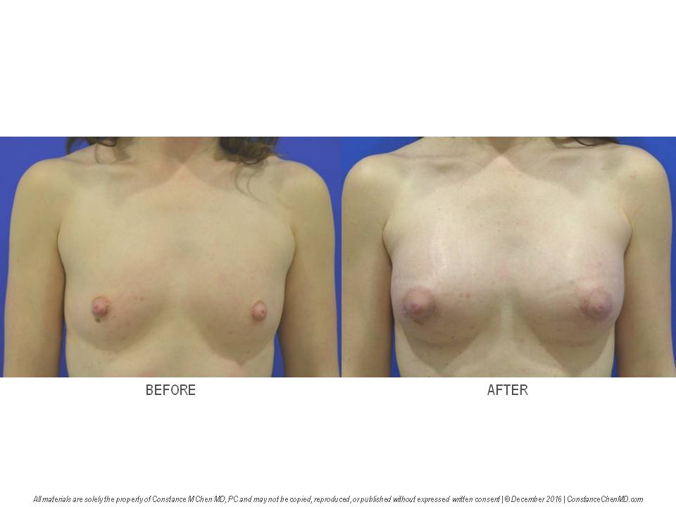 39-year-old woman (BMI 21) who underwent bilateral augmentation mammaplasty with 225 cc silicone gel implants