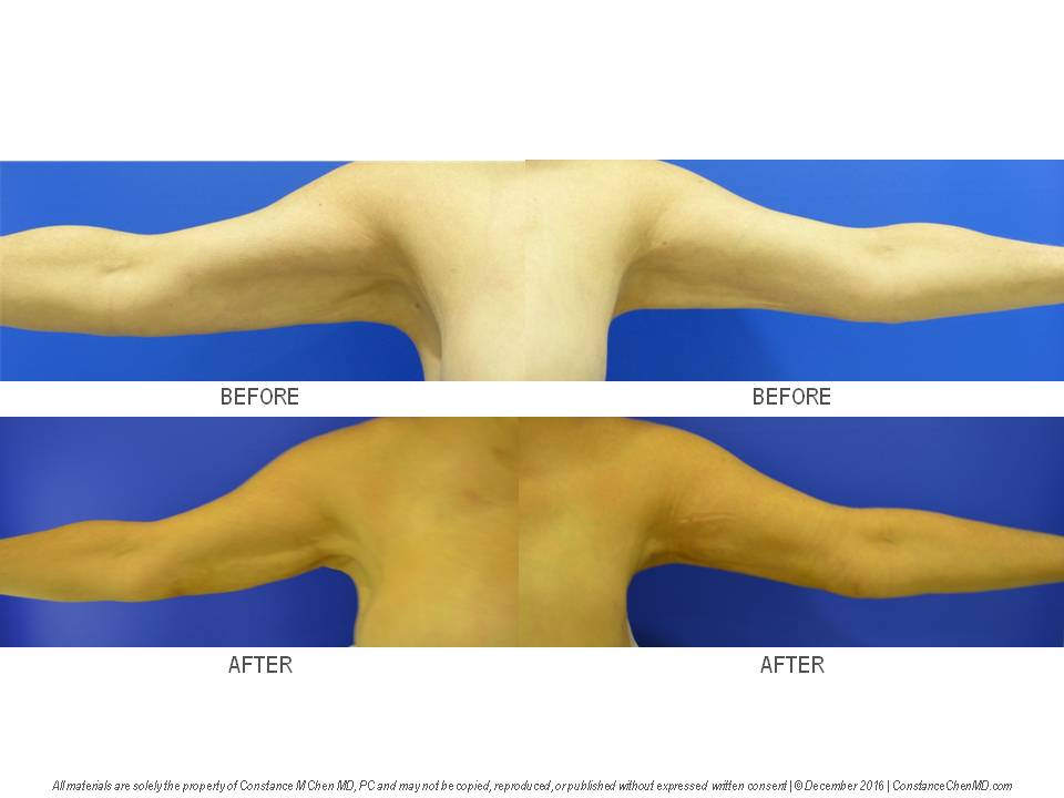 56-year-old woman (BMI 22.5) who wanted liposuction of her upper arms to improve contour