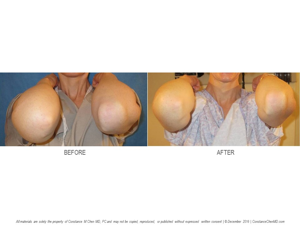 41-year-old   woman with 3-year history of right upper extremity of lymphedema after right lumpectomy and radiation. Dr. Chen performed an autologous lymph node transfer from her left groin to her right axilla, and the patient's right arm felt lighter and less swollen after surgery.