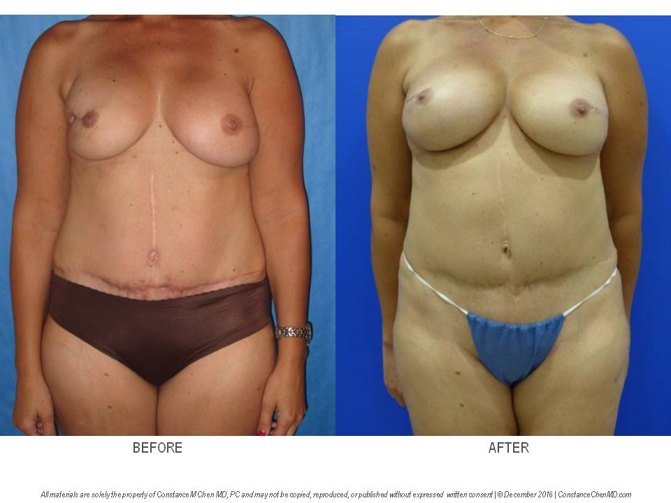 42-year-old woman who underwent bilateral nipple-sparing mastectomy and DIEP flap breast reconstruction then underwent a second stage fat transfer from her abdomen, flanks, and bilateral thighs to improve symmetry and add volume to her reconstructed breasts.