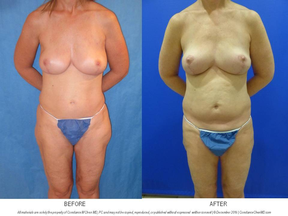 48-year-old BRCA+ woman who underwent bilateral prophylactic nipple-sparing mastectomy and PAP flap breast reconstruction followed by a second stage fat transfer from her abdomen, flanks, and bilateral thighs to add volume to her reconstructed breasts.
