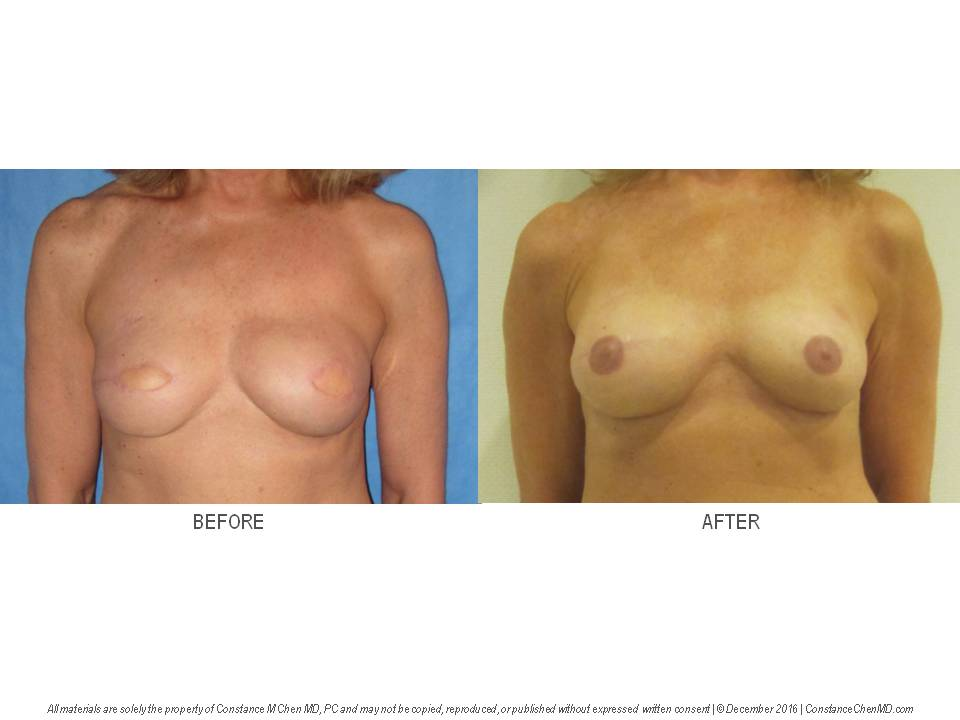 63-year-old woman with history of left breast cancer who underwent bilateral mastectomies and saline implant breast reconstruction by another surgeon. Dr. Chen removed both saline breast implants and performed bilateral PAP flap breast reconstruction with bilateral nipple reconstruction and areolar tattooing .