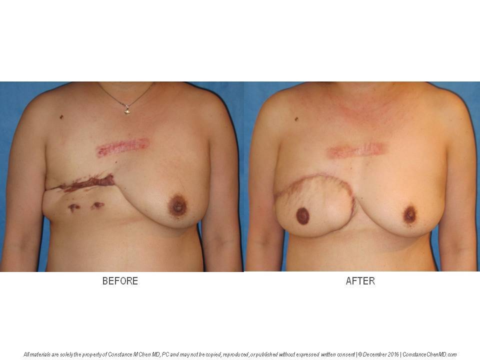 48-year-old woman with a history of right mastectomy and severe keloids. Dr. Chen performed a delayed right DIEP flap breast reconstruction with right nipple reconstruction using the nipple-sharing technique.