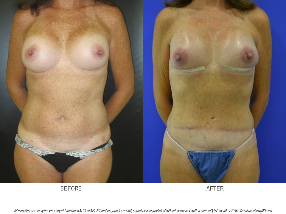 47-year-old woman with previous breast augmentation who developed left breast cancer and underwent bilateral nipple-sparing mastectomies with immediate DIEP flap breast reconstruction followed by bilateral silicone gel breast implants underneath her DIEP flaps at a second stage.