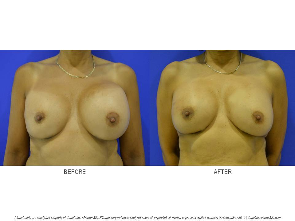Ruptured left breast implant