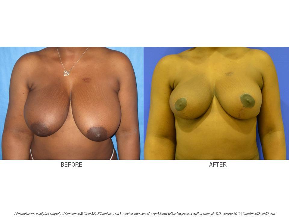 Oncologic breast reduction