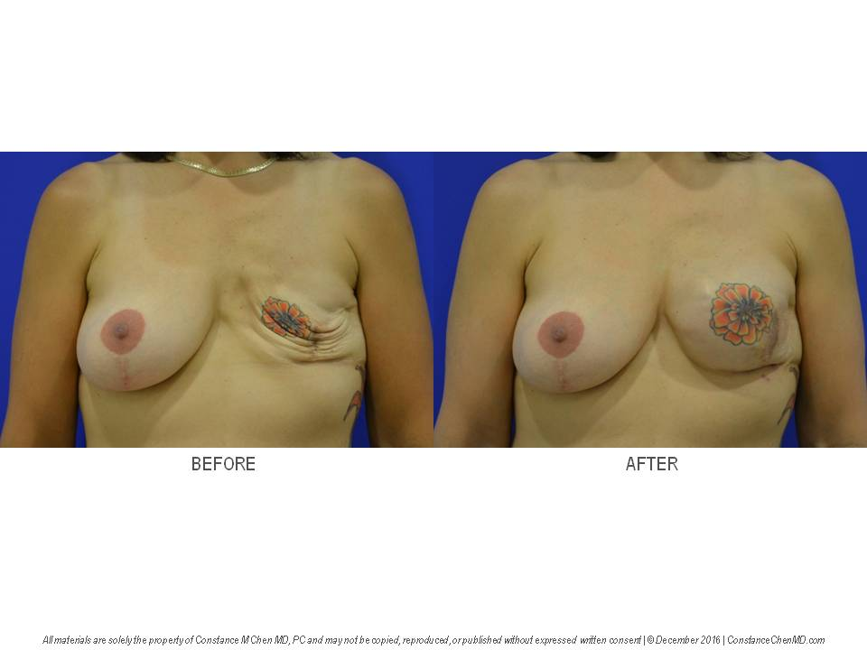 Ruptured saline breast implant