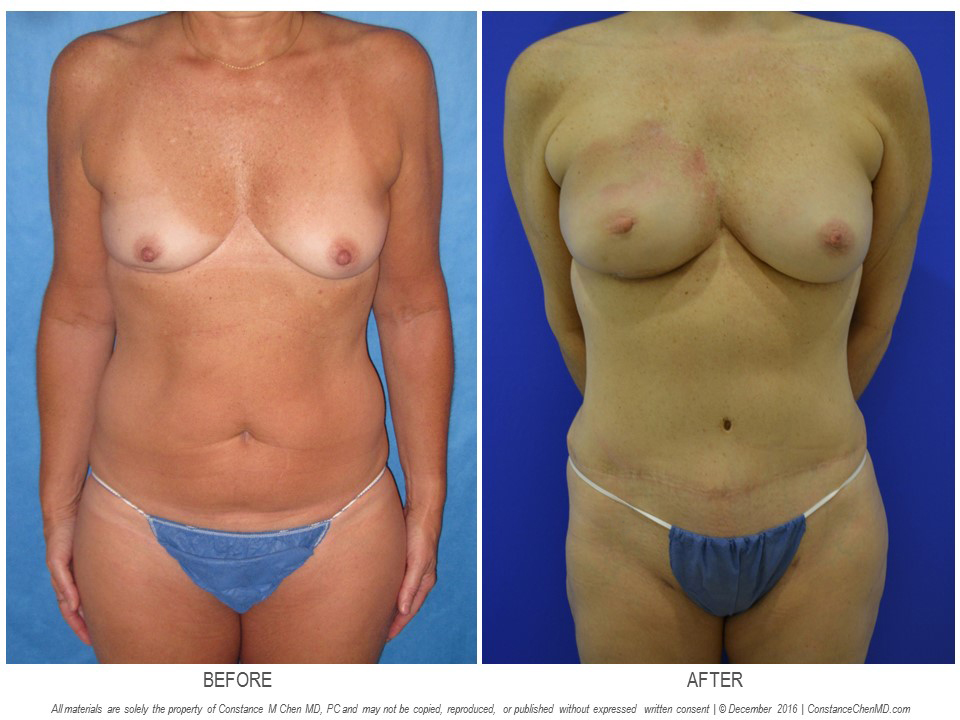 50-year-old woman with history of right breast biopsy developed left breast cancer underwent bilateral nipple-sparing mastectomies with immediate DIEP flap breast reconstruction and right breast radiation therapy