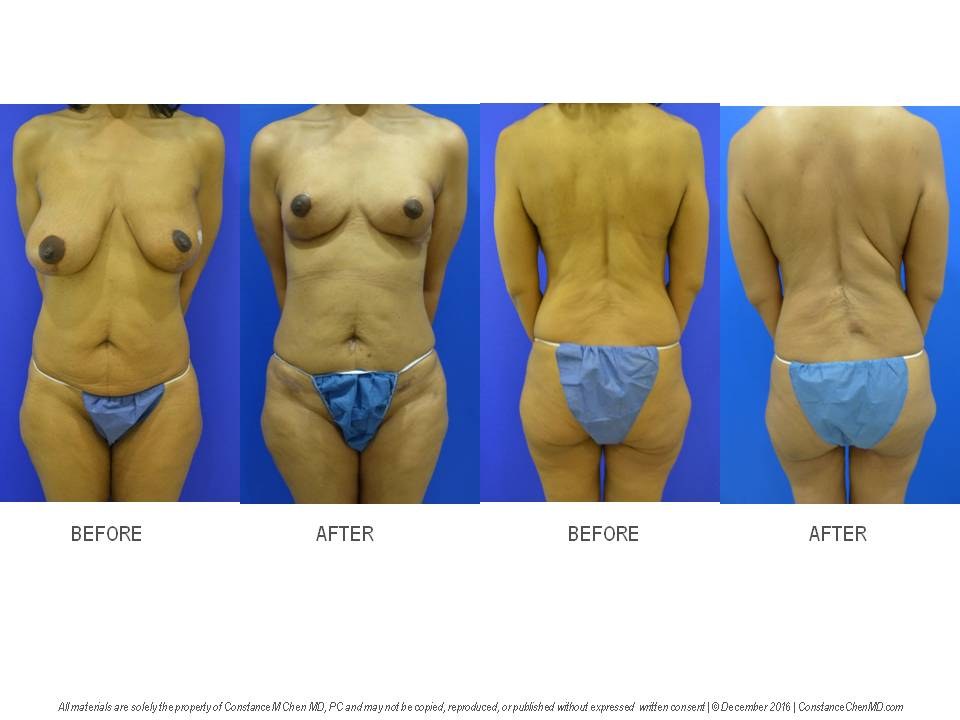44-year-old woman (BMI 20.9) with history of left breast cancer, left lumpectomy and radiation by another surgeon. The patient developed a recurrent left breast cancer and underwent bilateral prophylactic nipple-sparing mastectomies with immediate PAP flap breast reconstruction by Dr. Chen.