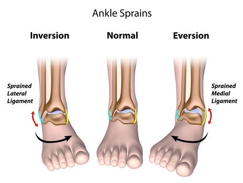 Ankle Sprain treated with Chiropractic Care | Herndon and Sterling, VA