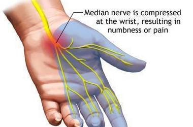 carpal tunnel syndrome anatomy and image of pinched nerve