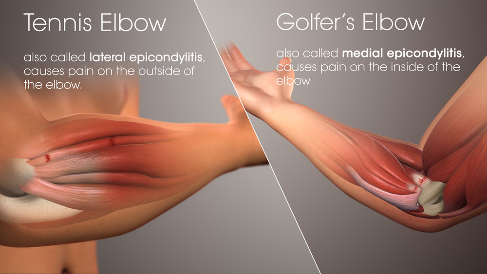 Tennis Elbow vs Golfer's Elbow | Chiropractic Care | Herndon and Sterling, VA
