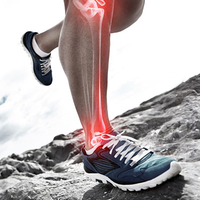 runners-shin.jpg