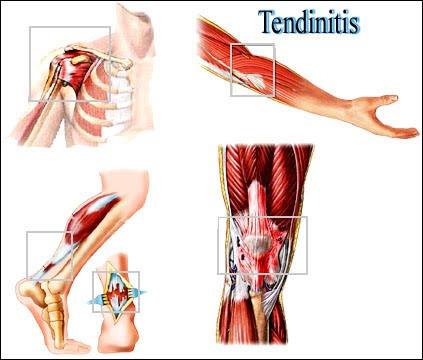 bdd7d-tendinitis.jpg
