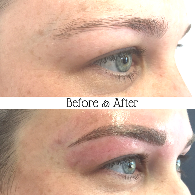 "Meet Beth, unhappy with her shape and sparse hairs through the tail we recreated her dream brows using feathering.   ""I wanted to get feather done as my eyebrows were really patchy and I wanted a natural awesome set of eyebrows without having to put makeup on every single day.  Georgi is absolutely lovely and very reassuring and made me feel very comfortable and answered any questions I had.  Throughout the tattoo procedure Georgi was absolutely fantastic, absolutely best experience I've had with any type of tattooing and 100% care for her client.  That first look was pretty overwhelming, they looked awesome! Definitely, absolutely amazing service""  Beth - Gladstone."