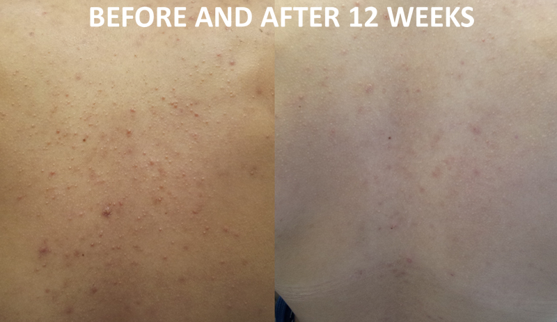 ENERPEEL ACNE BACK SA PEEL BEFORE & AFTER 4 SESSIONS + PRESCRITPTION PRODUCTS