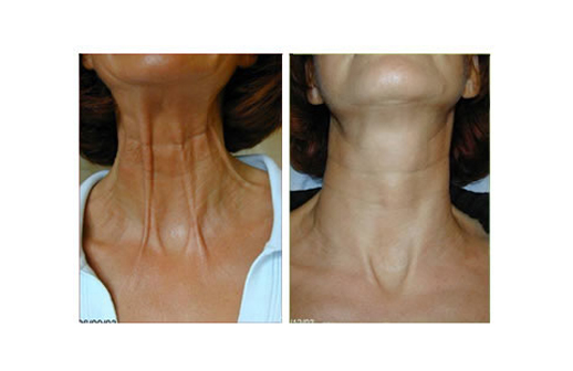 TSHAPE NECK LIFT, SKIN TIGHTENING RADIO FREQUENCY BEFORE & AFTER 8 SESSIONS WEEKLY