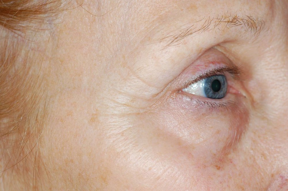 Enerpeel EL pigment eye before.jpg